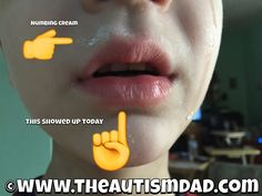 It's been a really long and emotional day. This flare that Emmett's enduring right now is really kicking his butt. He's started biting his upper and lower lips today and so now he's got these red sores that almost look like chapped lips but I'm not sure...  http://www.theautismdad.com/2015/08/16/its-tough-to-have-your-child-scream-at-you/  PLEASE LIKE AND SHARE   #Autism #Family #SPD #SpecialNeedsParenting #Aspergers #Parenting #Sens