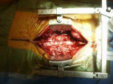 neurosurgery, surgery, discectomy, laminectomy, fusion, spinal, lumbar, lumbar spine