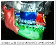 #Vates, #Nobracks, #3dPrint, #Impresión3d, #3d, #ortodoncia, #software, #ArcusTech