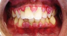 Tooth and gum issues can quickly turn into much bigger issues, and even on their own are miserable problems to deal with. Gingivitis is one of them.
