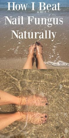 The natural way to fight and win against nail fungus. Get your nails ready for…
