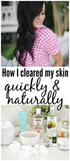 Natural Skin Care Routine - How I Healed My Skin! -