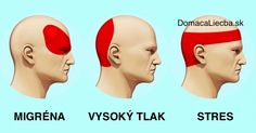 Užívanie liekov zakaždým, keď vás rozbolí hlava môže viesť k vážnemu poškodeniu obličiek pečene alebo čriev. Namiesto tabletiek skúste toto.