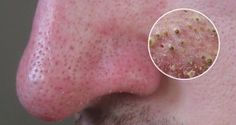 Having blackheads is a common skin condition that is caused by oily skin, poor diet, clogged glands or pores and oily hair. These black dots give an unhealthy look of the skin. The blackheads usual… Blackhead Remedies, Acne Remedies, Blackhead Remover, Health Remedies, Natural Remedies, Get Rid Of Blackheads, Pimples, Healthy Tips, Healthy Skin