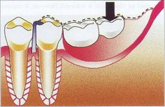 Ludhiana Dental Centre Best Place in India for Surgical Extraction of Tooth