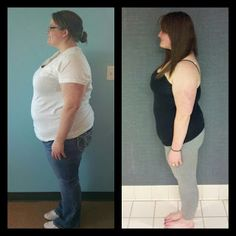 She's lost 80 pounds using HCG. She writes about the whole experience on this blog. :) Very motivational. #healthy