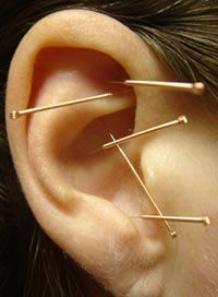 Auricular Acupuncture NADA protocol - shenmen, kidney, lung, sympathetic nervous system, liver points