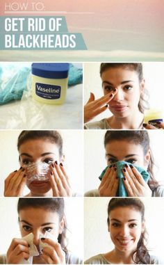 How to get rid of blackheads with Vaseline. Usually, Vaseline is used for making skin smooth and removing the dead skin cell by moisturizing the skin. Beauty Care, Beauty Skin, Beauty Makeup, Face Beauty, Makeup Eyes, Get Rid Of Blackheads, Pimples, Removal Of Blackheads, Beauty Hacks