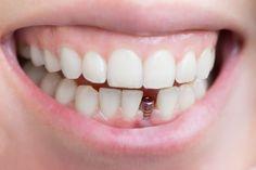 Ceaseless Dental Crowns Before And After Teeth #DentalimplantsBurnaby #DentalCrownPorcelain Dental Implant Procedure, Best Dental Implants, Implant Dentistry, Teeth Implants, Dental Surgery, Cosmetic Dentistry, Sleep Dentistry, Family Dentistry, Single Tooth Implant