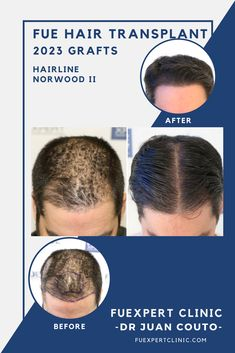 Before After 2023 FUE Grafts - FUE Hair Transplant - Dr Couto - FUExpert  Clinic -