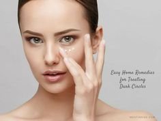 15 Easy #HomeRemedies for Treating #DarkCircles