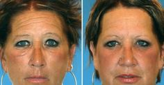 Even though identical twins are as close to genetically identical as possible, changes in lifestyles can affect two people very differently. Take for instance smoking, and the damages it can cause over a lifetime. Because identical twins are almost geneti