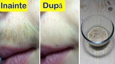 Proprietățile unice ale țelinei cu vene varicoase - Ulcere - April
