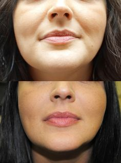 Juvederm before and after picture for the nasolabial fold area