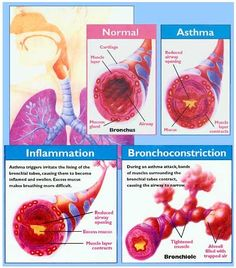 asthma intrinsic asthma Hi all, i suffer from intrinsic asthma and i've really been struggling to get it under control, i was diagnosed almost 2 years ago and it's never really.