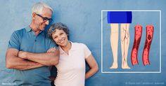 La investigación muestra que hay problemas de salud relacionados con ser más alto, como problemas de coágulos sanguíneos que afecta a 600 000 habitantes cada año.