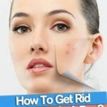 Do you want to know how to get rid of pimples overnight? A pimple is also known as pustules or papule, spots or zits. Pimples that occurs when sebaceous glands (oil glands) which are contaminated with microbes and swell up. The sebum helps to maintain the oil balance of the skin and makes it look healthy and the excess sebum secretion by the oil glands is the main cause of this problem. Pimples or acne generally occurs on the face, neck, shoulders, and back.