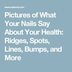 Pictures of What Your Nails Say About Your Health: Ridges, Spots, Lines, Bumps, and More