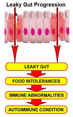 Leaky gut leads to food intolerance | Need more information about ingredients to determine if truly corn free