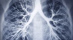 5 Of The Best Natural Remedies For Cleaning Your Lungs Of Nicotine And Tar | Spirit Science