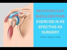 How to Cure Your Shoulder (Tendonitis, Bursitis, Impingement) - YouTube
