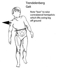 sharp pain in hip flexor when walking muscle stretch massage=p