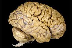 Den ser ut som en stor grå klump, men hjernen vår er så komplisert at vi trolig aldri kommer til å forstå den helt. Her kan du utforske hjernens mysterier, finne nye sider av hjerneforskningen og se hva som skjer med hjernen når du sover.