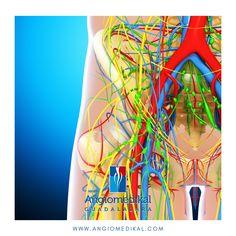 🔷 Varices⠀ 🔷 Trombosis⠀ 🔷 Enfermedades arteriales⠀ 🔷 Pie diabético ⠀ 🔷 Fístulas y catéteres para hemodiálisis⠀ 🔷 Úlceras crónicas⠀ 🔷 Malformaciones vasculares #varices #escleroterapia #angiotips #flebitis #trombosis #angiologo #angiologogdl #angiologozapopan #tipsmedicos #ulceravenosa #dolor #trombosis #varicesgdl #variceszapopan #venasvaricosas #ulceravenosa #gangrena #piediabetico #zapopan #gdl #guadalajarajalisco #clinicadepiediabetico #infarto #linfedema #edema #ulceravaricosa Edema, Varicose Veins
