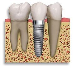 If you are missing one or multiple teeth, then dental implants are one of the best solutions for you. Here are the steps which come under Dental implants- evaluation of mouth, a general anesthesia to numb the area, screwing the Implant and osseointegration.