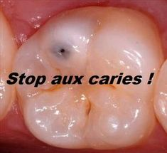 Stop aux caries ! Dental, Aromatherapy, Fitness Tips, Health Care, Vegetables, Healthy, Food, Danger, Sport