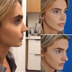 This lovely patient underwent a Rhinoplasty procedure, enhancing her natural beauty and restoring fa Nose Plastic Surgery, Korean Plastic Surgery, Nose Surgery, Nose Fillers, Bulbous Nose, Pretty Nose, Under Eye Fillers, Rhinoplasty Before And After