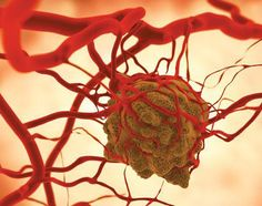 Researchers identify previous unknown pathway for cancer cell activation. Holistic Approach To Health, Holistic Nutrition, Health And Nutrition, Health And Wellness, Gerson Therapy, Natural Cancer Cures, Ovarian Cancer Awareness, Cancer Fighting Foods, Healing Herbs