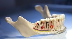 An RCT or Root Canal Treatment is a dental treatment for repairing a decayed or infected tooth. In the process of a root canal, the pulp & nerve connecting the tooth with jaw is removed to prevent further decay or infection. Tooth Extraction Aftercare, Tooth Extraction Healing, Dental Health, Dental Care, Dental Hygiene, Oral Health, Tooth Infection, Root Canal Treatment, Emergency Dentist