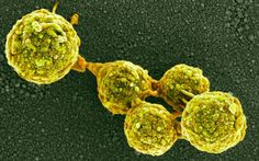 Germs 2.0: the first self-replicating bacteria made in a lab, May 2010.