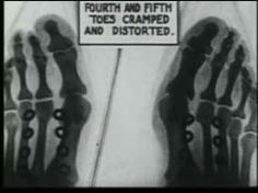 X-Ray of shoe fit 1950s