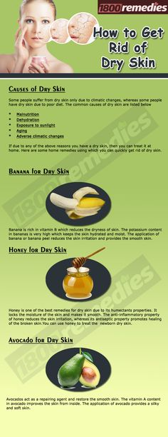 Nobody likes dry flaky skin. So, want to know how to get rid of dry skin? - Jessica Hurtado - - Nobody likes dry flaky skin. So, want to know how to get rid of dry skin? Flaky Skin On Face, Dry Flaky Skin, Dry Skin On Face, Facial For Dry Skin, Dry Skin Causes, Dry Skin Remedies, Health Remedies, Natural Remedies, Homeopathic Remedies