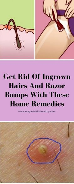 Get Rid Of Ingrown Hairs And Razor Bumps With These Home Remedies