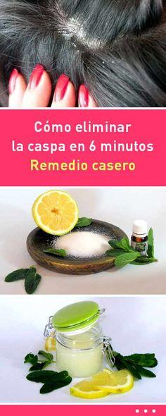 Cómo eliminar la caspa en 6 minutos. Remedio casero #caspa #eliminar #quitar #pelo #cabello #remediosnaturales #exfoliante #cuerocabelludo