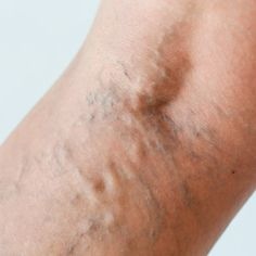 How to Get Rid of Varicose Veins with 5 Natural Remedies