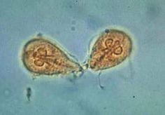 giardia lamblia (Flagellate) (Giardiasis) Travelers Diarrhea) Diagonosis recover and identify in tropozoites or cysts in feces for the specimen requirements the stool specimens should be examined for all of the possible parasites it should be stained and smeared How i remeber it is it kind of looks like a face. Distrubution is worldwide