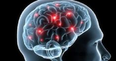 """Scientists Discover that the Brain Cleans Itself """"We're hopeful that these findings have implications for many conditions that involve the brain, such as traumatic brain injury, Alzheimer's disease, stroke, and Parkinson's disease. Corps De Lewy, Brain Health, Mental Health, Heart Health, Brain Nutrition, Health Bar, Healthy Brain, Public Health, Menopause"""
