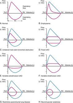 spirometry graph   The basic forced volume vital capacity (FVC) test varies slightly ...