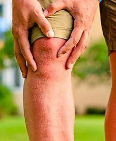 6 aliments anti arthrose