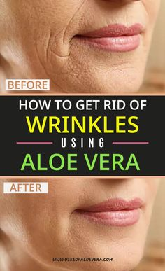 what if we have a simple solution that reduces all these issues with natural ingredients easily? The ingredients will not only remove wrinkles, stretch marks, blemishes, and burns, it can also act as a natural skin health booster. Aloe Vera Skin Care, Aloe Vera For Face, How To Get Rid, How To Remove, Brown Spots On Face, Face Wrinkles, Wrinkle Remover, Tips Belleza, Health And Beauty Tips