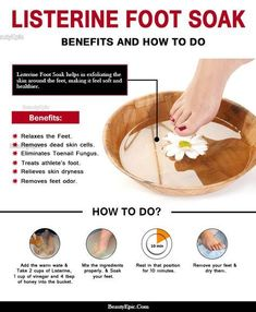 Listerine Foot Soak - Benefits and How to Do It The Right Way? You do not have to run to a beauty clinic for an expensive foot soak every time you plan on one, you can just do Listerine foot soak at home. Pedicure Soak, Pedicure At Home, Beauty Care, Diy Beauty, Beauty Hacks, Beauty Ideas, Beauty Secrets, Beauty Products, Beauty Guide