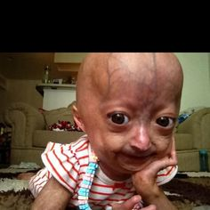 Adalia Rose. An extremely strong 5 year old young lady with Progeria Syndrome.