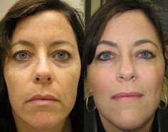 Facial workouts involving yoga face exercises can rub out forehead, mouth, face wrinkles fast. Tone and firm up sagging face and neck skin with yoga facial exercise methods http://www.facelift-without-surgery.biz/faceliftwithoutsurgery.html #faceexercises #foreheadlinestreatment
