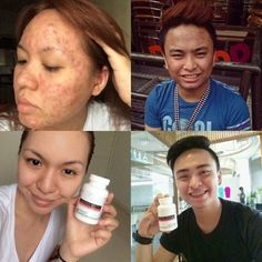 Buy Frontrow Luxxe White Enhanced Glutathione Most Effective Skin Whitening Supplement. the Best Skin Whitening Supplement for Men and Women. Vitamins For Skin, Acne Breakout, Body Organs, Detox Your Body, Cc Cream, Even Skin Tone, Beauty Industry, Skin Problems