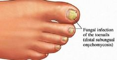 If so, your problem may be toenail fungus or onychomycosis. Affecting of Americans, toenail fungus is condition where a fungus called dermatophytes live underneath the nail and. Toenail Fungus Home Remedies, Toenail Fungus Treatment, Fingernail Fungus, Natural Skin Whitening, Toe Fungus, Fungal Infection