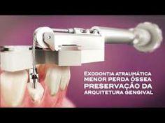 extrator de raizes dentarias - Pesquisa Google